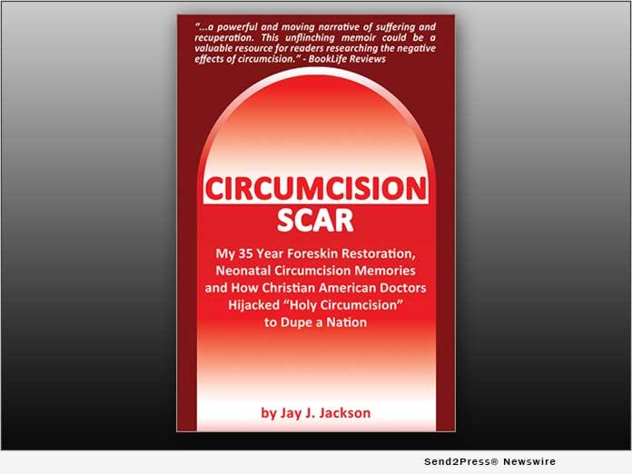 BOOK: Curcumcision Scar - by Jay J. Jackson