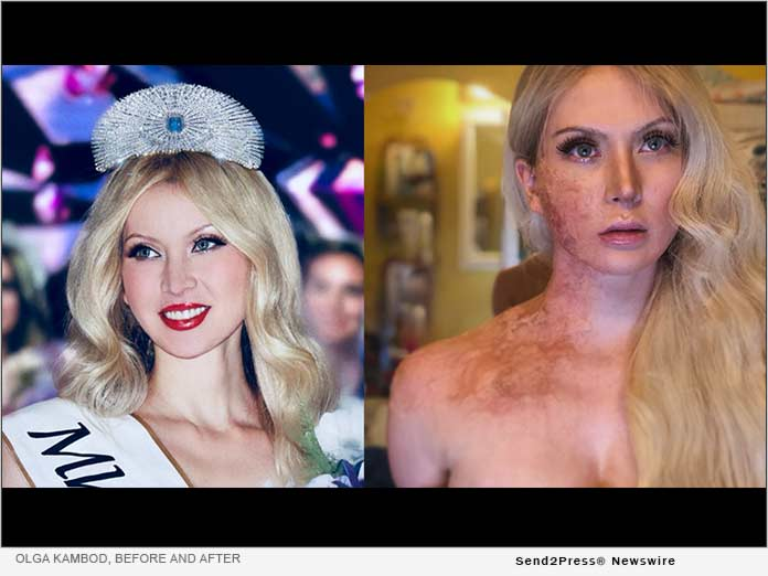 Olga Kambod, before and after images